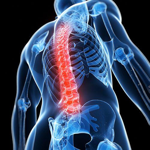 Acquiescence Ruling (AR) 15-1(4) Apply to Disorders of the Spine